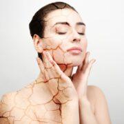 Causas de la piel seca