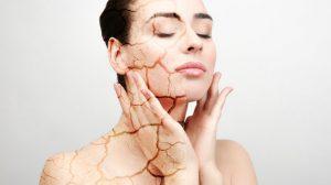 ¿La piel seca puede ser síntoma de una enfermedad? Causas de la piel seca